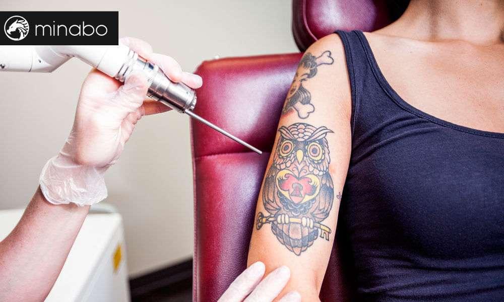 Láser para eliminar tatuajes: todo lo que necesitas saber